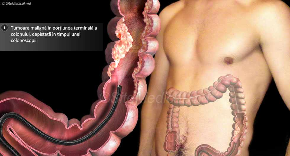Cancer colorectal detectat la colonoscopie